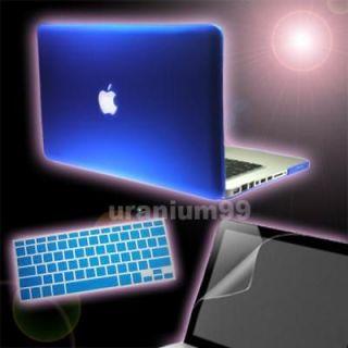 macbook pro 13 skin in Laptop & Desktop Accessories