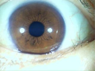 0M Iriscope/Iridology eye(Support hai/skin lens) with software
